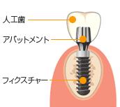 人工歯アバットメントフィクスチャー