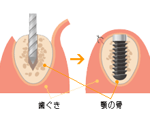 歯ぐき顎の骨