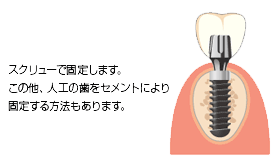 スクリュ-で固定しますこの他人工の歯をセメントにより固定する方法もあります